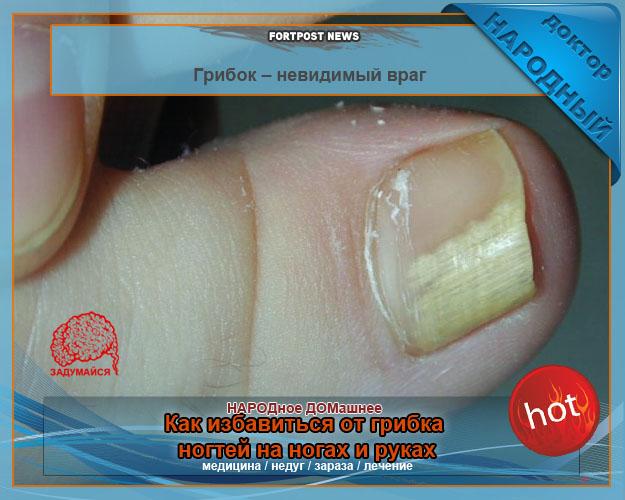 помогите избавиться от пигментных пятен на лице